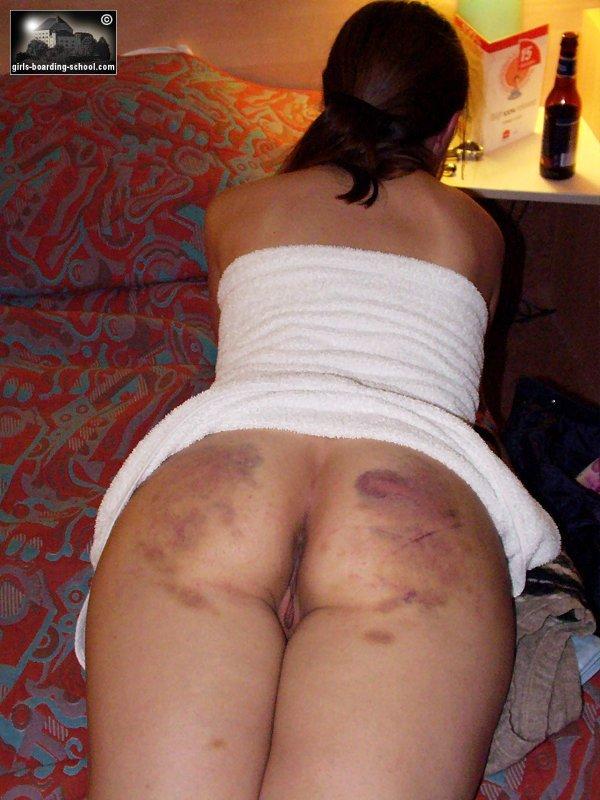 Bottom Marks Spanking Website Corporal Punishment